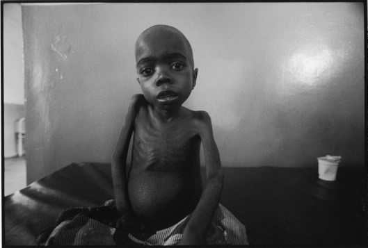 A Congolese child suffering from malnutrition waits to die in a clinic in North Kivu, DRC. Such images are perpetually used to provoke western media spectators to donate to corporate relief operations. Photo Keith Harmon Snow, 2005.
